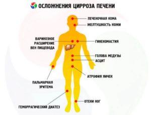 Симптомы и диагностика цирроза печени у алкоголиков