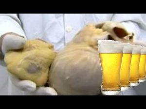Что будет если пить алкоголь каждый день
