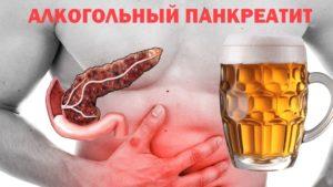 Можно ли употреблять алкоголь при панкреатите?