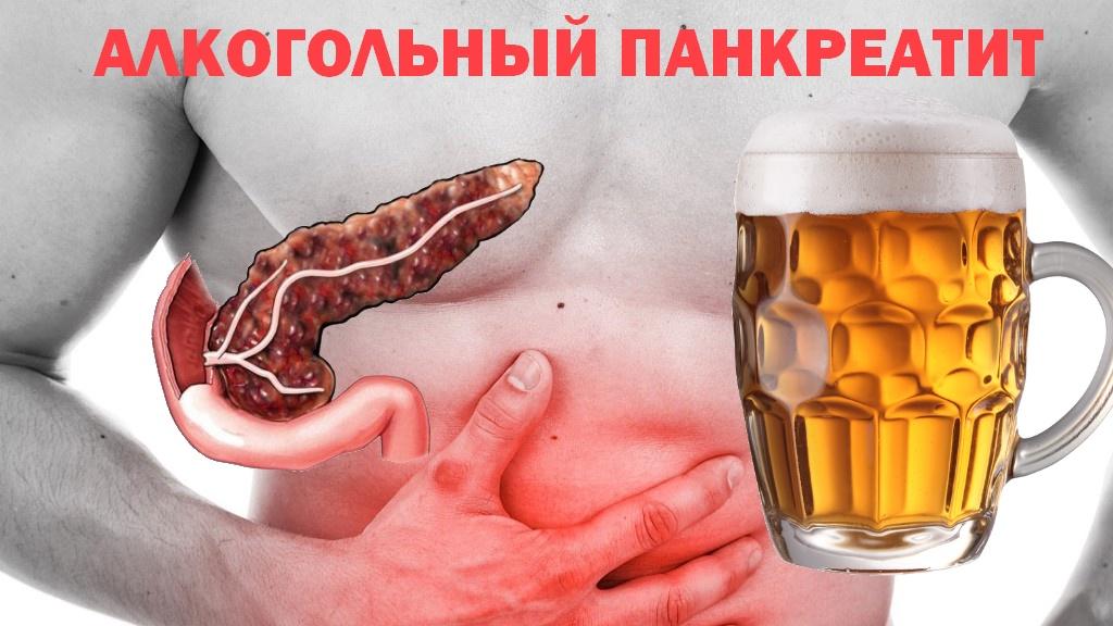 Можно ли пиво при холецистите