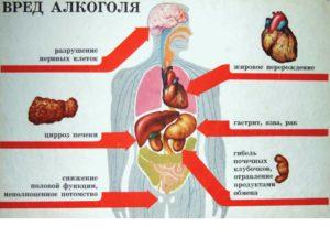 Непереносимость алкоголя или алкогольдегидрогеназа
