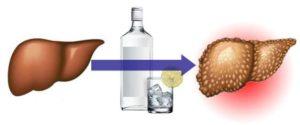 Восстановление печени народными средствами после алкоголя
