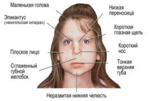 Гипертонический синдром у детей что это — Про сосуды